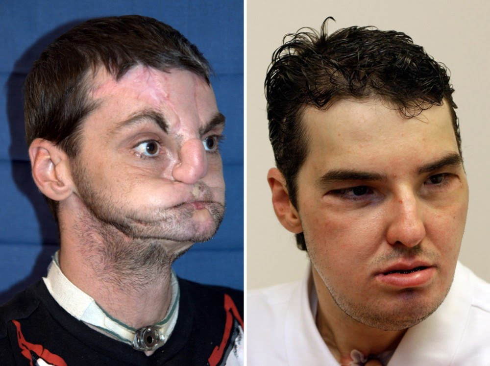 Join. facial first transplant world criticising